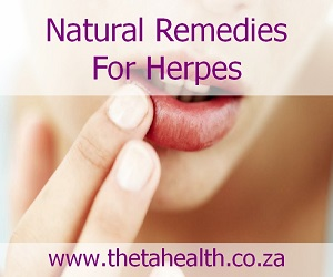 Natural Remedies for Herpes